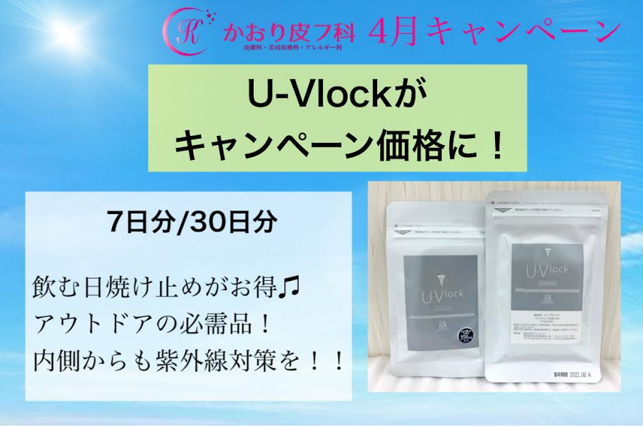 U-Vlock